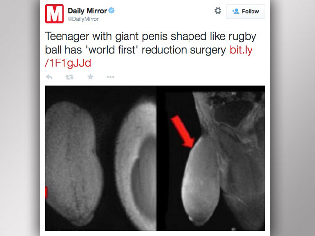 first penis reduction surgery