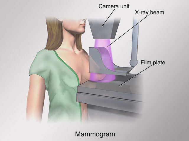 Cancer Group's Mammogram Advice: Start Later and Get Fewer