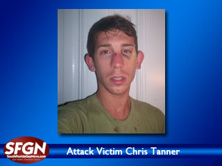 Attack Victim Chris Tanner